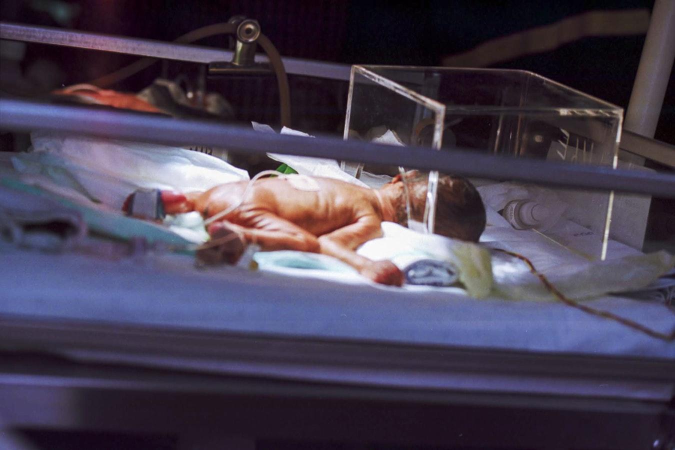 Bayi Tabung: Bagaimana Prosedur dan Berapa Biaya yang Diperlukan?